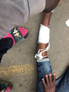 One of the injured Protesters in Osogbo