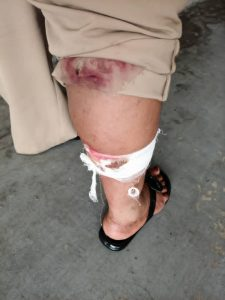 The injury the dog inflicted on the woman inspector