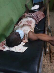 Injured Muslim